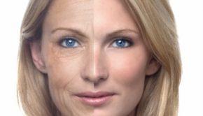 viso invecchiamento rimedi alimentazione cosmetica