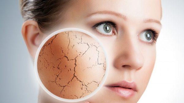 trattamento pelle secca cosmetica naturale