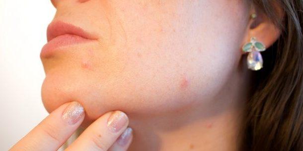 acne cause e rimedi naturali